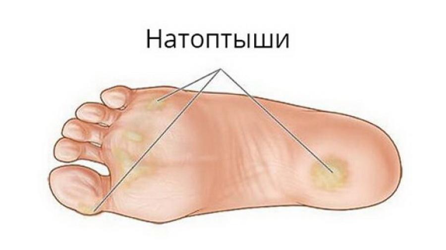 мозоль на ноге лечение быстрое термобелье